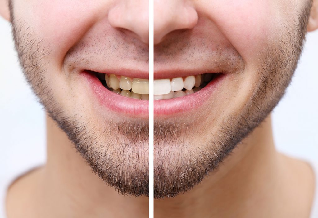 before and after photo of teeth whitening